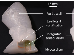 科学家3D打印出逼真的心脏瓣膜模型