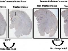 研究发现阿尔茨海默症疗法中的性别特异性